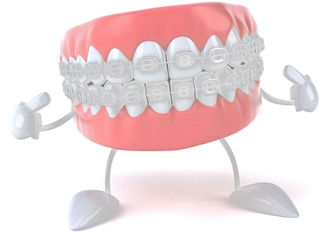 Când este nevoie de un aparat dentar